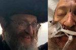 Nechutný antisemitský útok: Rabínovi zasekl nůž do hlavy, muž nyní zemřel