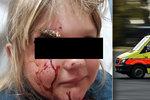 Hororový konec učení na kole: Dívce z Kladenska projel hlavou klacek po nárazu do stromu