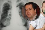 Odborníci upozorňují na záludnou plicní hypertenzi: Včasná diagnóza zachrání životy