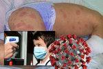 Záhadná nemoc dětí může souviset s koronavirem, připouští lékaři. Objeví se i u nás?