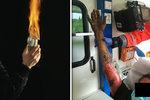 """""""Hodili po mně Molotovův koktejl!"""" tvrdil popálený muž: Kvůli zraněním skončil v umělém spánku"""