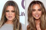 Není to někdo jiný? Khloe Kardashianová si už po plastikách není podobná!