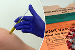 Vakcína na spalničky jako poslední záchrana? Mohla by zabránit sepsi, věří vědci