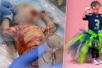 Holčička se narodila bez kůže: Díky vzácné nemoci jí nabídli práci modelky!