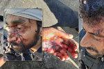 Svazování, bití, mučení, popsala neziskovka chování policie k migrantům. A obula se do EU