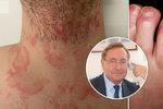 Nádory, žloutenka, plicní nemoc, AIDS i covid-19. Expert o tom, jak nemoci poznat z kůže