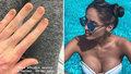 Týnuš Třešničková ukázala popálené ruce: Takhle vypadají po 8 měsících léčby