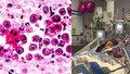 Dívku (†10) zabil parazit, který požírá mozek! Na Ústecku má 16 obětí