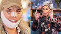 »Lidský Ken« Rodrigo Alves pláče: Rozpadá se mu nos!