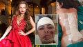 Misska se brutálně zranila při bouračce: Už nikdy nebudu chodit, obává se