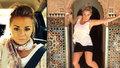 Žena odjela do Turecka na plastiku hýždí: Zemřela přímo na operačním stole!