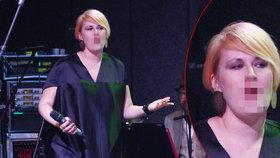 Šok na pódiu: Tereza Černochová začala krvácet během vystoupení