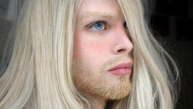 Muž utratil skoro milion, aby vypadal jako elf. Teď chce špičaté uši!