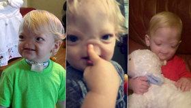 Statečný Eli (†2) trpěl vzácnou nemocí: Narodil se bez nosu, boj o svůj život prohrál