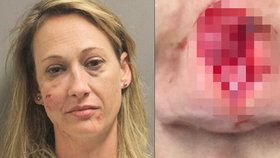 Žena odmítla koupit alkohol a cigarety. Alkoholička jí za to ukousla nos!