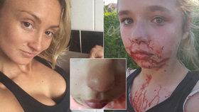 Boxerka (28) zmlátila školačku (11). Dívka skončila se zlomeným nosem a celá od krve