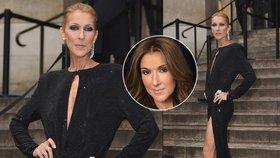 Vychrtlá Céline Dionová děsila propadlými tvářemi! Doháněla to nekonečným rozparkem