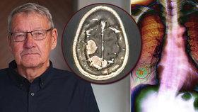 Točila se mu hlava, omdléval: Krutý verdikt lékařů Pavla (68) šokoval!