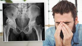 Můj penis se mění v kost! Muž zjistil šílenou diagnózu při rentgenu