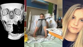 Dívka spadla z koně: Čelist jí zůstala viset jen na kousku kůže, musela si ji držet rukou