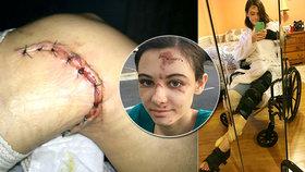Opilá zdravotní sestra vypadla ze 4. patra na beton: Zázrakem přežila!