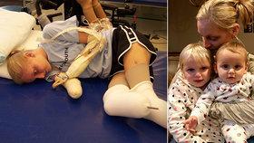 Erice (34) museli amputovat všechny končetiny: Péči o děti zvládá i s handicapem