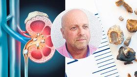 Pozor na ledvinové kameny! Urolog vysvětlil, jak k nim napomáhá i strava