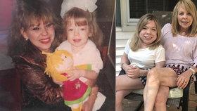 Matka (68) budí dospělou adoptivní dceru (21) olizováním obličeje: Nevidí na tom nic špatného