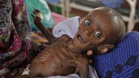Kvůli suchu děti umírají hlady. Za měsíc jich v Etiopii zemřelo 70