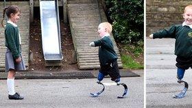 Dojemné obrázky: Chlapec bez končetin září štěstím: Jsem jako akční hrdina