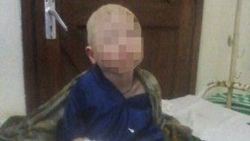 Albínskému chlapci Barakovi usekli ruku, aby někomu přinesla bohatství