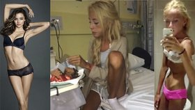 Hubená modelka Miranda Kerr mě dohnala na pokraj smrti: Vážila jsem 31 kilo!