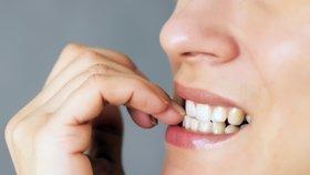 Koušete si nehty? Víme, jak to škodí a jak se toho zbavit!