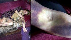 Žena se probrala po tahu s děsivými modřinami: Je to leukemie, šokovali ji lékaři