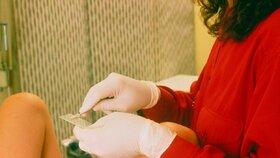 Šokující zpráva: Testy rakoviny děložního čípku nefungují