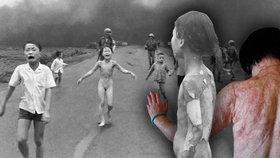 Ikonické foto z války ve Vietnamu: Žena po 40 letech podstoupí léčbu jizev