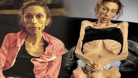 Anorektička prosila o pomoc: Díky dobrodincům získala 5 milionů korun na léčbu!