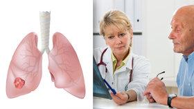 Rakovina plic ročně zabije 5400 Čechů! Pomoci má speciální vyšetření! Kolik životů zachrání?