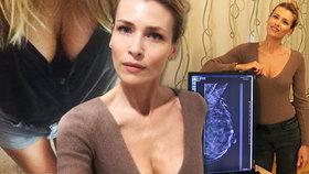 Peštová se bojí rakoviny! Ukázala snímek svého ňadra a vzkazuje mámě: Jdi na vyšetření