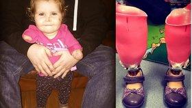 Holčička přišla v deseti měsících o nohy i ruce. Nyní může opět chodit!