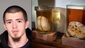 Kradl lidské mozky, prodával je online jako dekoraci. Účtoval si 2500 korun