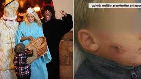 Čert napadl děti v Šumperku leptavou mastí: Útočníkům nebylo ani 15 let