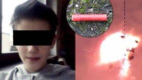 Tomášovi (13) bouchla v ruce petarda: Prsty hledali v trávě