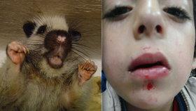 Pětiletého chlapce napadla obří krysa: Chtěla mu prý sežrat srdce!