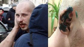 Ukrajinský poslanec ukousl ucho oponentovi při rvačce: Chtěl mu i vydloubnout oči!