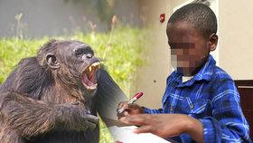 Šimpanzi chlapci roztrhali pusu, operace mu má vrátit úsměv