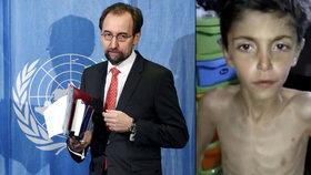 Hladomor v Sýrii je válečným zločinem. Komisař OSN kritizoval obléhání měst