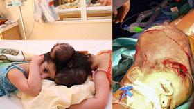 Úspěch lékařů: Za 10 hodin rozdělili siamská dvojčata srostlá hlavami