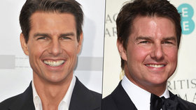 Co to má Tom Cruise s tváří? Mission: Botox-ible?