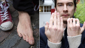 Muž se narodil s nefunkční rukou: Lékaři mu na ni přišili prsty z nohou!